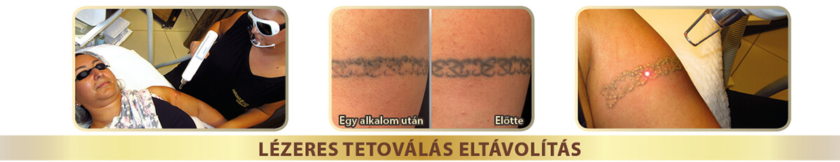 header tattoremoval